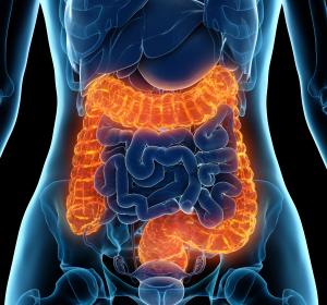 Chronisch entzündliche Darmerkrankungen: Frühzeitige Behandlung von Eisenmangel ist relevant