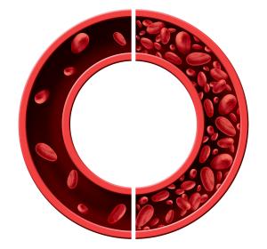 CKD-assoziierte Anämie: Ergebnisse der DOLOMITES-Studie zur Wirksamkeit und Sicherheit von Roxadustat