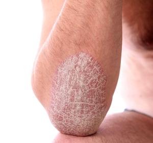 Atopische Dermatitis: Tralokinumab erreicht Endpunkte in zulassungsrelevanten Studien