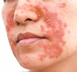 Atopische Dermatitis: Verbesserung der Hautläsionen und verringerter Juckreiz unter Upadacitinib in Phase-III-Studie