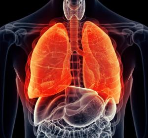 Rheuma-Patienten: Entwarnung für Methotrexat