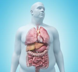 Adipositas: Krankenkassen-finanziertes Therapieprogramm belegt Erfolge