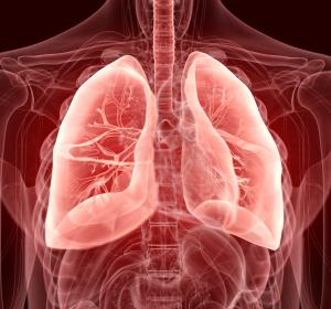 Chronische PF-ILD: Zulassung von Nintedanib