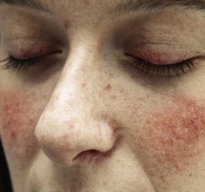 Rosacea und Psoriasis: Extrem hohe Krankheitsbelastung