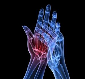 Umgang mit herausfordernden Therapiesituationen in der Rheumatologie – auch in COVID-19-Zeiten