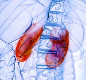 Chronische Niereninsuffizienz: Senkung des Mortalitätsrisikos unter Dapagliflozin