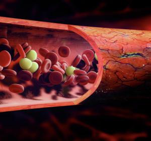 Gefäßentzündung durch rheumatologische Erkrankung: Neue S2k-Leitlinie zum Management der Großgefäßvaskulitiden