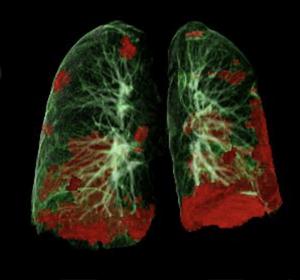 Langzeitstudie zu COVID-19: Schwer Erkrankte profitieren von langfristiger interdisziplinärer Nachsorge