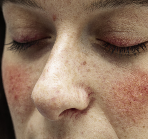 Rosacea: Kombinationstherapie auch bei schwerer papulopustulöser Ausprägung wirksam
