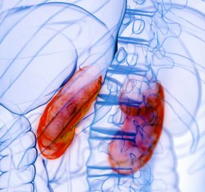 Akutes Nierenversagen: Bei intensivpflichtigen COVID-19-Patienten häufig