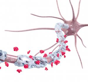 Multiple Sklerose: Schneller Wirkeintritt unter Cladribin