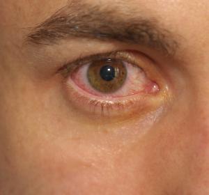 Übertragung von COVID-19: Aerosole deutlich infektiöser als Tränenflüssigkeit oder Bindehaut