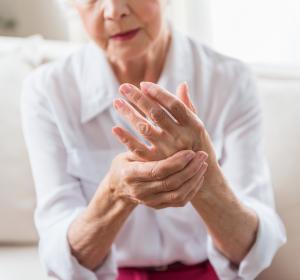 Rheumatoide Arthritis: JAK-Inhibitor wirkt stärker analgetisch als Biologikum