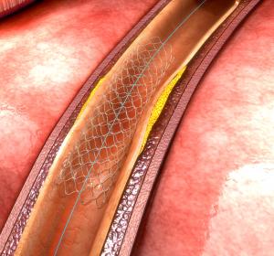 Thromboserisiko: Verringerung unter Stent im Vergleich zu DAPT