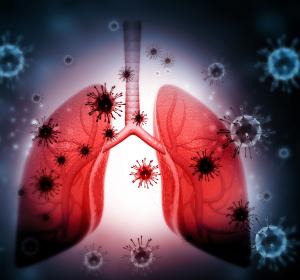 Bildgebung und Diagnose: Intelligenter Lungenultraschall bei COVID-19