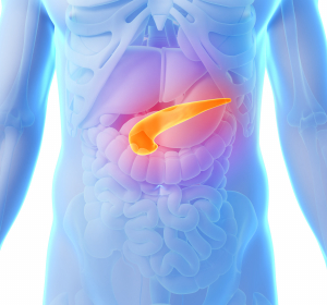 Chronische Pankreatitis: Risikofaktor für ein Pankreaskarzinom