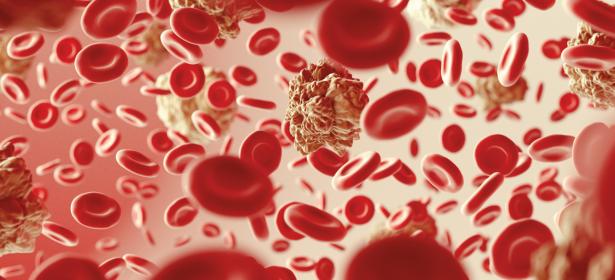 B-Zell-Lymphom-Update%3A+DLBCL+bei+%C3%84lteren+und+Therapiestandards+bei+der+CLL