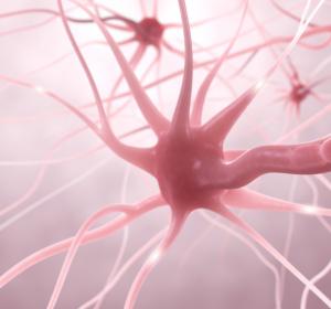 Therapie der Multiplen Sklerose mit Cladribin: Früh effektiv intervenieren