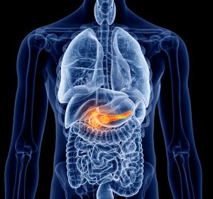 Chronische Pankreatitis: Risikofaktor für Pankreaskarzinome