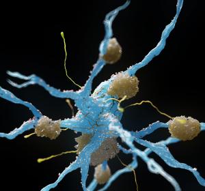 Auf dem Weg zur individuellen Alzheimer-Prognose