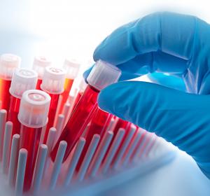 Angiosarkom und Sarkom-Diagnostik per Liquid Biopsy