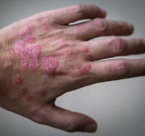 Langanhaltende Erscheinungsfreiheit bei Nagel-Psoriasis unter Ixekizumab