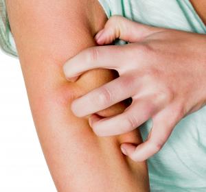 """""""Treat-to-Target"""" bei Atopischer Dermatitis: Interleukin-13 im Fokus"""
