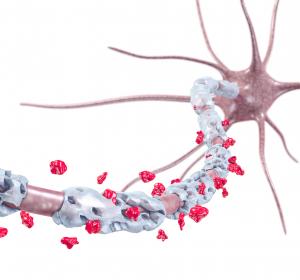 Alzheimer: Prognostischer Bluttest im symptomfreien Zustand