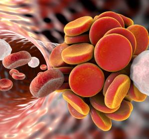Thromboseneigung bei COVID-Patienten: Primärprävention im Lockdown nicht außer Acht lassen