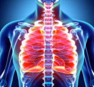 Chronische progredient fibrosierende interstitielle Lungenerkrankungen: G-BA bestätigt Zusatznutzen von Nintedanib