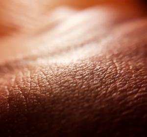 Risankizumab bei Psoriasis-Arthritis: Phase‑III-Ergebnisse zeigen Verbesserungen der Krankheitsaktivität bei Gelenk- und Hautsymptomatik