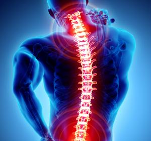 Chronische Rückenschmerzen: Opioid mit dualem Wirkmechanismus