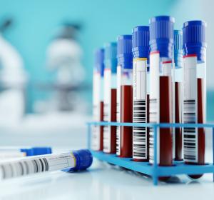 SARS-CoV-2-Testung: cPass-Test ermöglicht schnellen Nachweis von Antikörpern