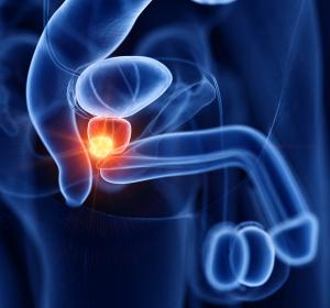 Die Therapie des nichtmetastasierten Prostatakarzinoms