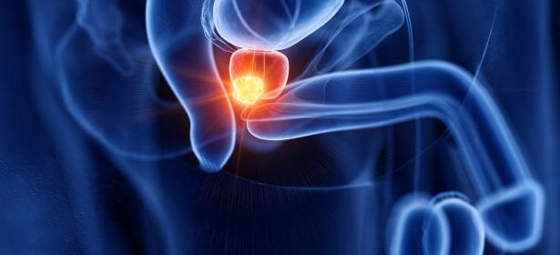 Die+Therapie+des+nichtmetastasierten+Prostatakarzinoms