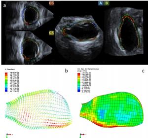 Bauchaortenaneurysmen: Risikoabschätzung mittels 4-D-Ultraschallscreening