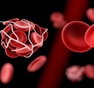 Apixaban in der Behandlung tumorassoziierter VTE: Blutungsrisiko auch bei gastrointestinalen Tumoren nicht gesteigert