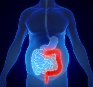 U-ACCOMPLISH-Studie zu Upadacitinib bestätigt verbesserte klinische, endoskopische und histologische Ergebnisse bei Colitis ulcerosa