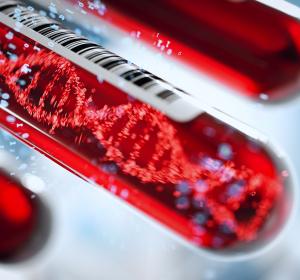 """""""Fatal"""" oder hilfreich? Trisomie-Bluttest soll Kassenleistung werden"""