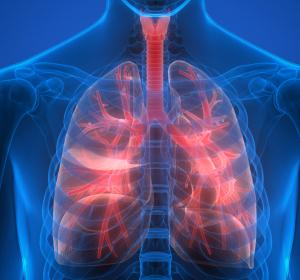 COPD: Reduktion von Exazerbationen und Hospitalisierungen unter neuer Triple-Therapie