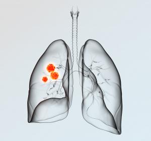 Moderate bis schwere COPD: Exazerbationsrate mit neuer fixen Dreifachtherapie senken