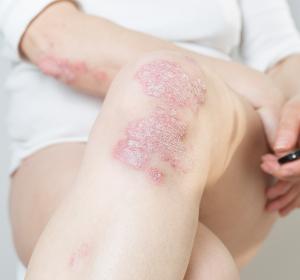 Atopische Dermatitis und Psoriasis: Neue molekulare Mechanismen identifiziert