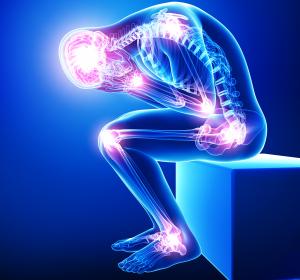 Muskuloskelettale Schmerzen – ernst nehmen und topisch mit NSAR behandeln