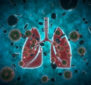 COVID-19-Atlas der Gewebeschäden und Viruslast in Organen