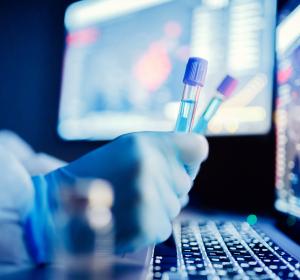 Monoklonaler Antikörper gegen COVID-19: EMA prüft VIR-7831