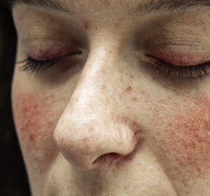 Rosacea: Verstärkte Krankheitsbelastung durch Maskentragen