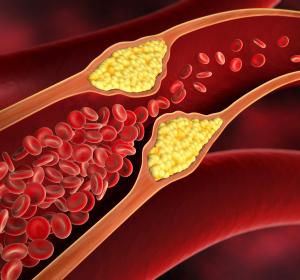 PCSK9-Inhibitor: LDL-C-Senkung zeigt reduziertes kardiovaskuläres Risiko