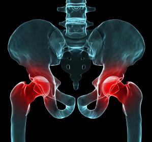 Neue Leitlinie unterstützt Ärzte bei korrekter Indikationsstellung zur Hüft-Endoprothese