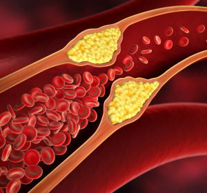 Primäre Hypercholesterinämie: Signifikante Senkung des LDL-C-Spiegels unter Inclisiran