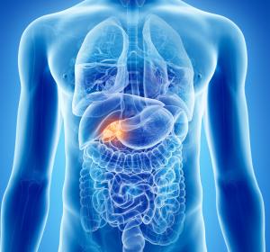 Gallengangskarzinome%3A+Heterogene+Gruppe+maligner+bili%C3%A4rer+Tumoren
